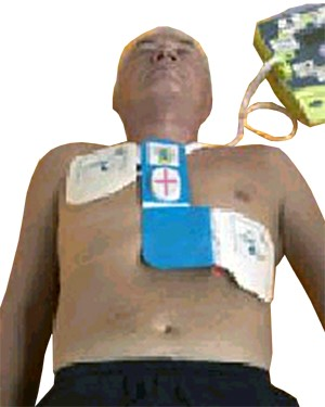 Zoll AED Plus Unit applied to person in Sudden Cardiac Arrest